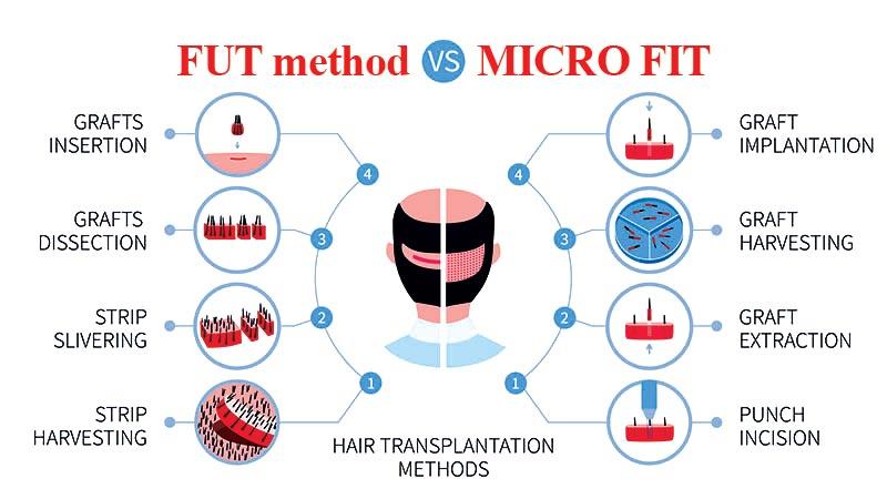 مقایسه روش میکرو FIT با FUT