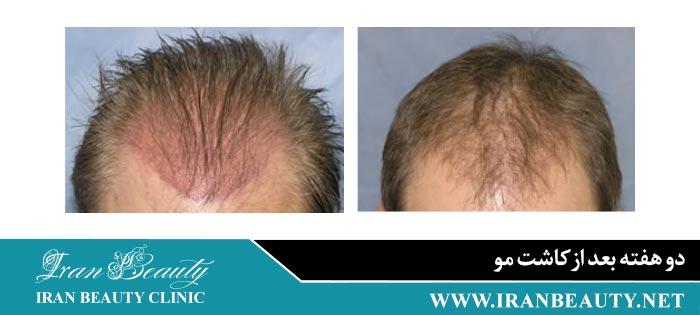 دو هفته بعد از کاشت مو