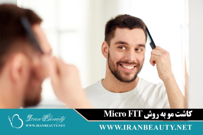 کاشت مو به روش Micro FIT