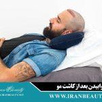 نحوه خوابیدن بعد از کاشت مو