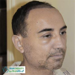 درمان ورم بعد از کاشت مو